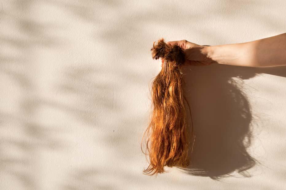 Aşırı Saç Dökülmesinin Nedenleri Nelerdir?