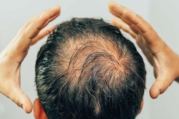 Stresin Saç Seyrekliğindeki Rolü