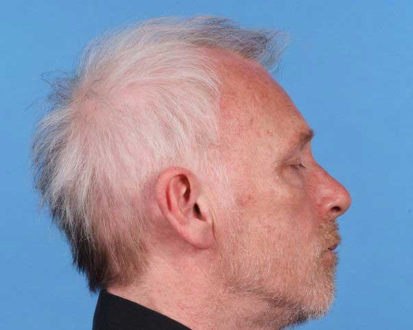 Beyaz Saç Ekilir Mi? Yan Etkileri Var Mı?