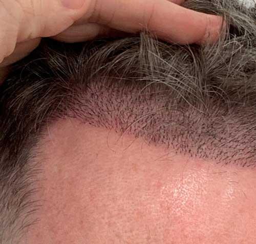 Ekilen Saçlar Nasıl Daha Hızlı Uzar?