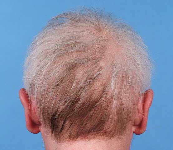 Saç Dökülmesinin Temel Sebepleri Nelerdir?