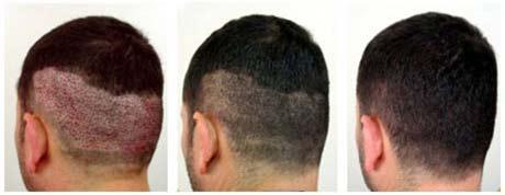 Saç Ekimi Sonrasında Dikkat Edilmesi Gerekenler