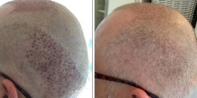 saç ekimi sonrası iyileşme süreci