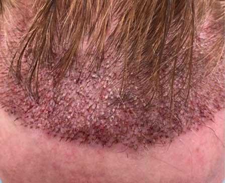 Tıraşsız saç ekimi sonucu 3
