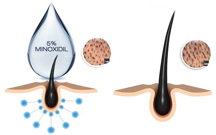 Saç ekimi Sonrası Minoxidil Mekanizmasının Çalışması