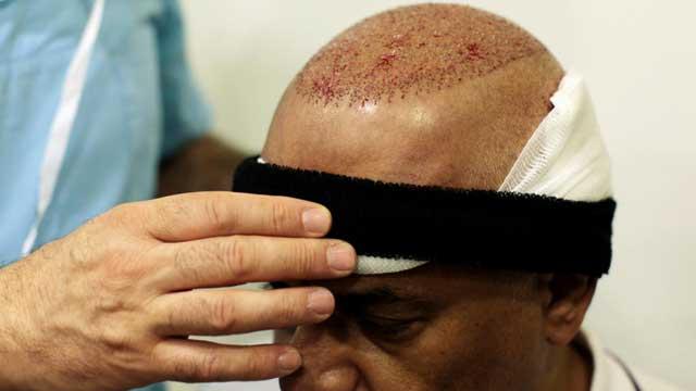 Saç Ekimi Sonrası Şişliğin Alında, Ensede, Gözde ve Yüzde Oluşması
