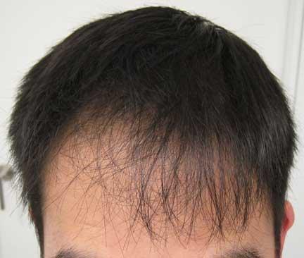 Asimetrik Saç Çizgisi