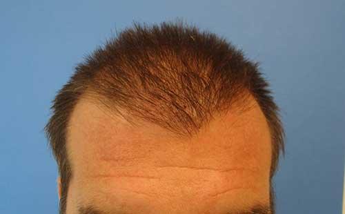 Saç Ekimi Sonrası Kabuklanma Ne Zaman Biter?