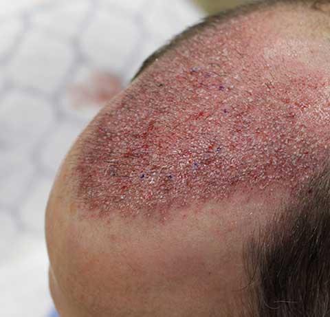 Saç Ekimi Sonrasında Ciltte Hassasiyet Oluşur Mu?