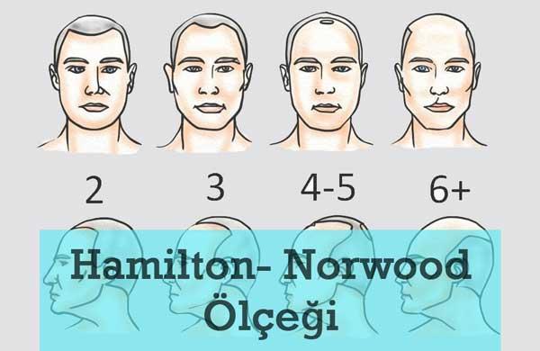 Haöilton Norwood Ölçeği ve Saç Ekimi Analizi