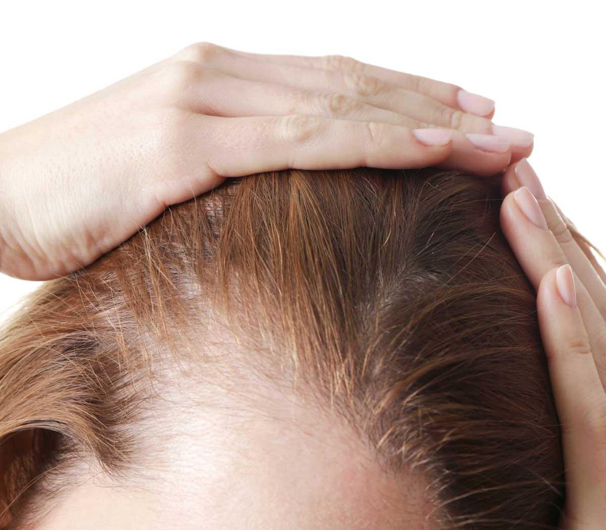 Kadınlarda Saç Dökülmesi Engellenebilir Mi?