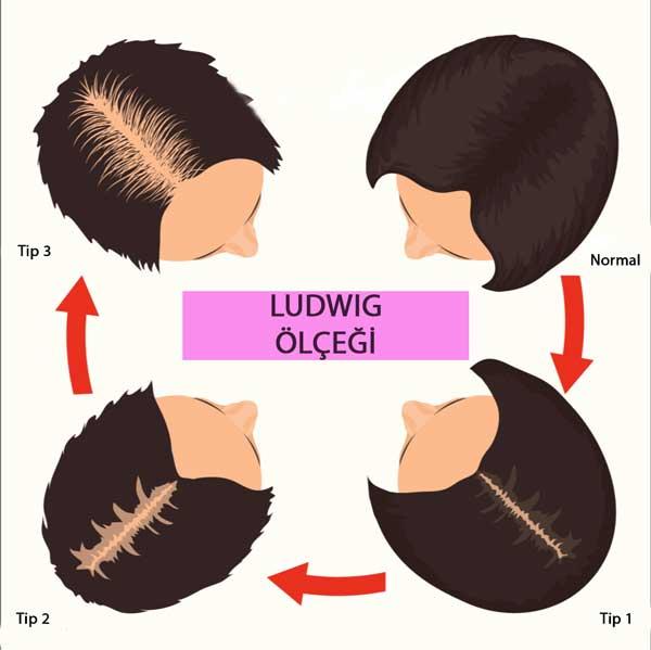 Ludwig Ölçeği ve Saç Ekimi Analizi