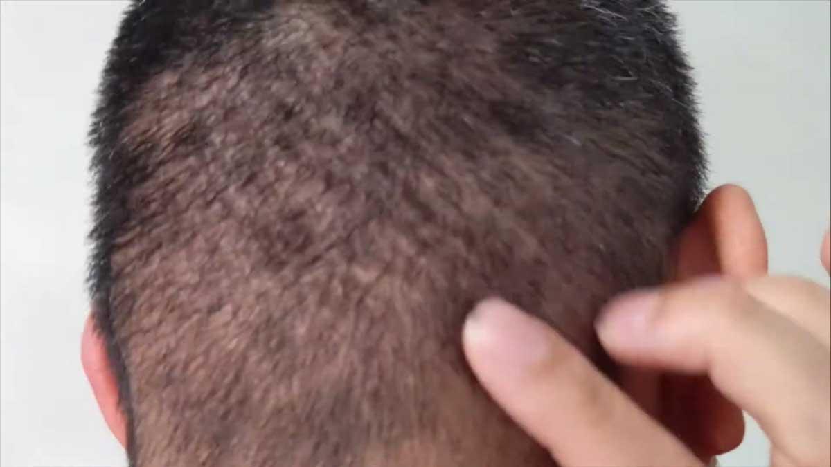 Saç Ekimi sonrasında Kaşıntı Olur Mu?