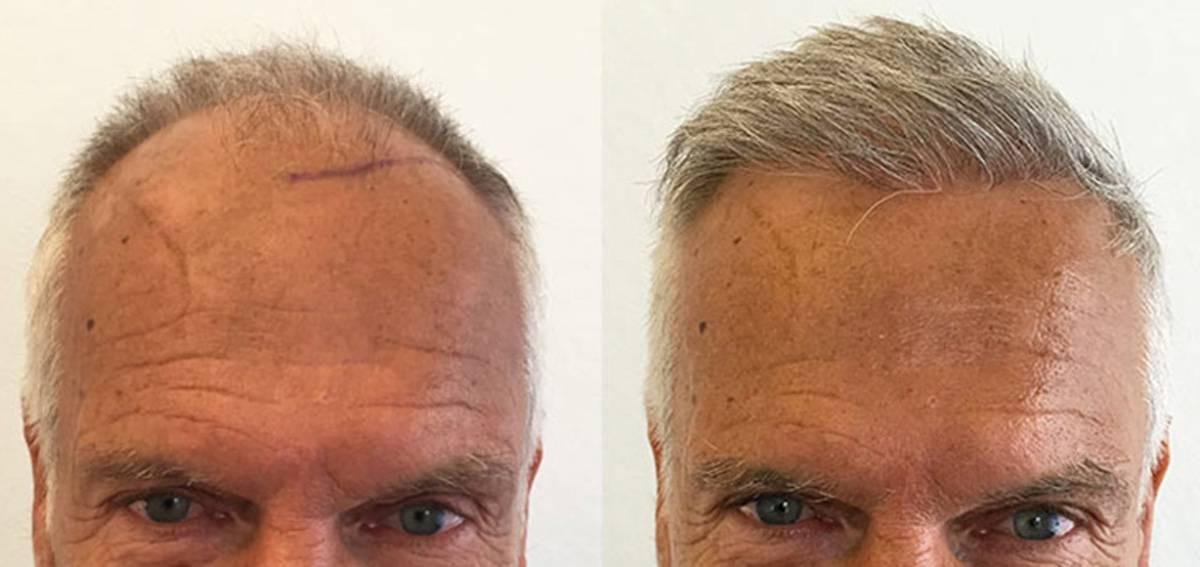 Beyaz ve Gri Saçlarda Saç Ekimi
