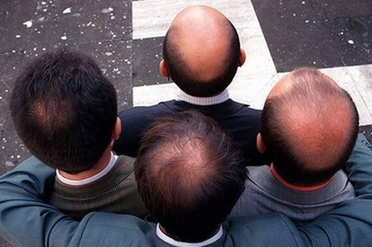 Genetik Saç Dökülmesi Önlenebilir Mi?