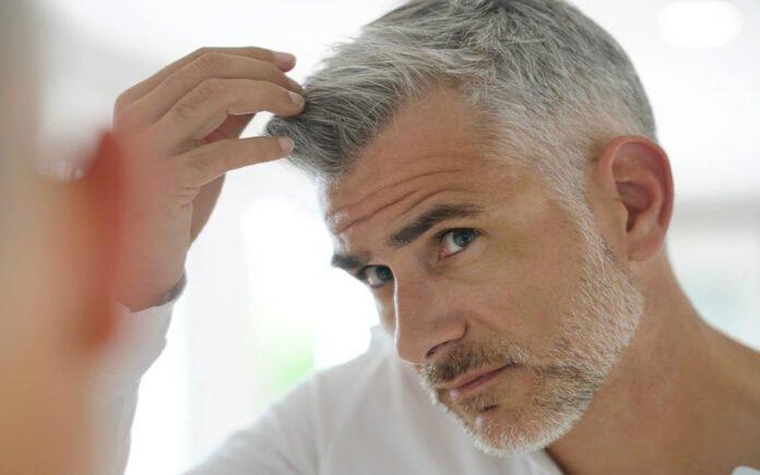 Saç Beyazlaması İçin Hangi Doktora Gidilir