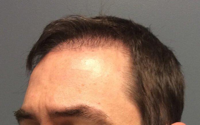 Saç Ekimi Sonrası Dökülme