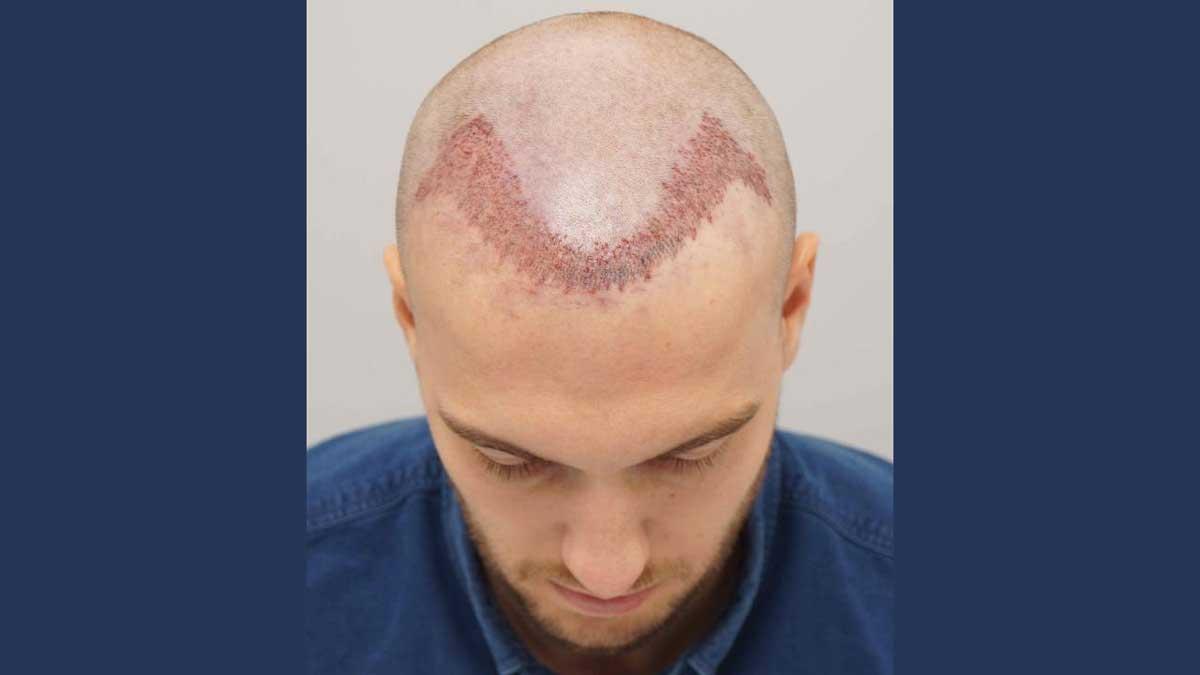 Saç Ekiminden Sonra Yıkama Neden Önemli