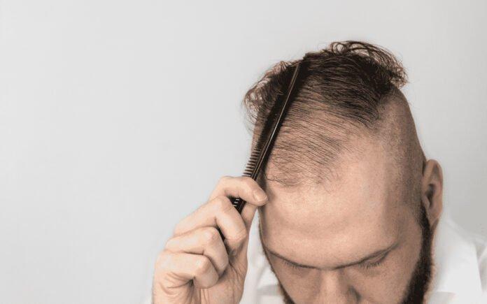 Seyrek Saçlar Nasıl Gürleşir?