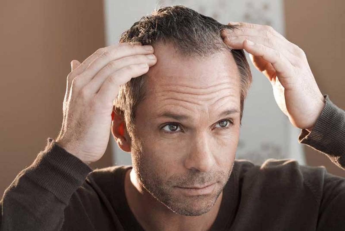 Seyrek Saçları Gürleştirmek İçin Yapılması Gerekenler
