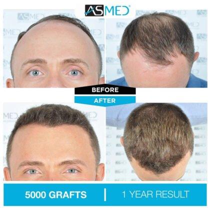 Asmed Saç Ekimi Öncesi ve Sonrası 1