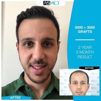 Asmed Saç Ekimi Öncesi ve Sonrası 2