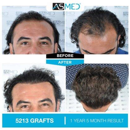 Asmed Saç Ekimi Öncesi ve Sonrası 3