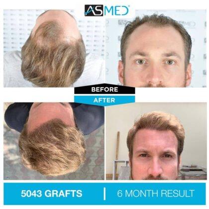 Asmed Saç Ekimi Öncesi ve Sonrası 4