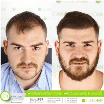 ClinicHair Saç Ekimi Öncesi ve Sonrası 1