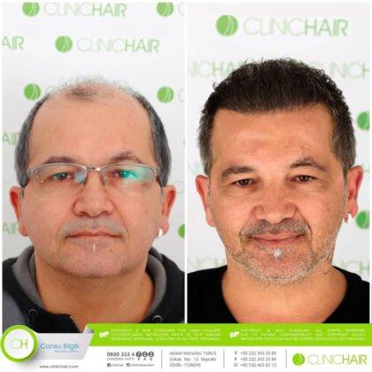 ClinicHair Saç Ekimi Öncesi ve Sonrası 4
