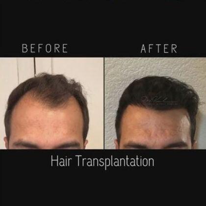 Dr. Zekeriya Kul Saç Ekimi Öncesi ve Sonrası 1