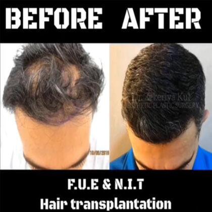 Dr. Zekeriya Kul Saç Ekimi Öncesi ve Sonrası 2