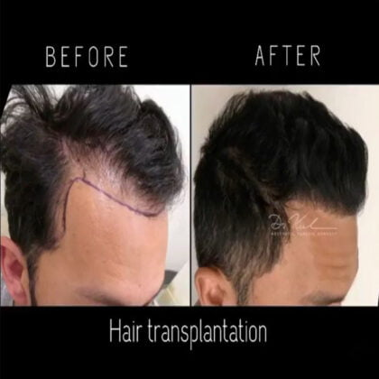 Dr. Zekeriya Kul Saç Ekimi Öncesi ve Sonrası 3