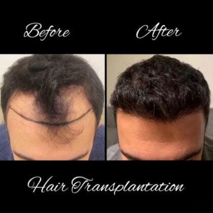 Dr. Zekeriya Kul Saç Ekimi Öncesi ve Sonrası 4