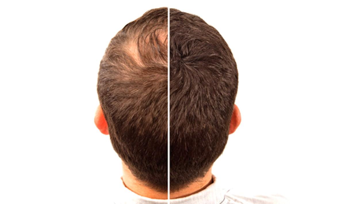 Erkek Tipi Saç Dökülmesi Kaç Yaşında Durur?