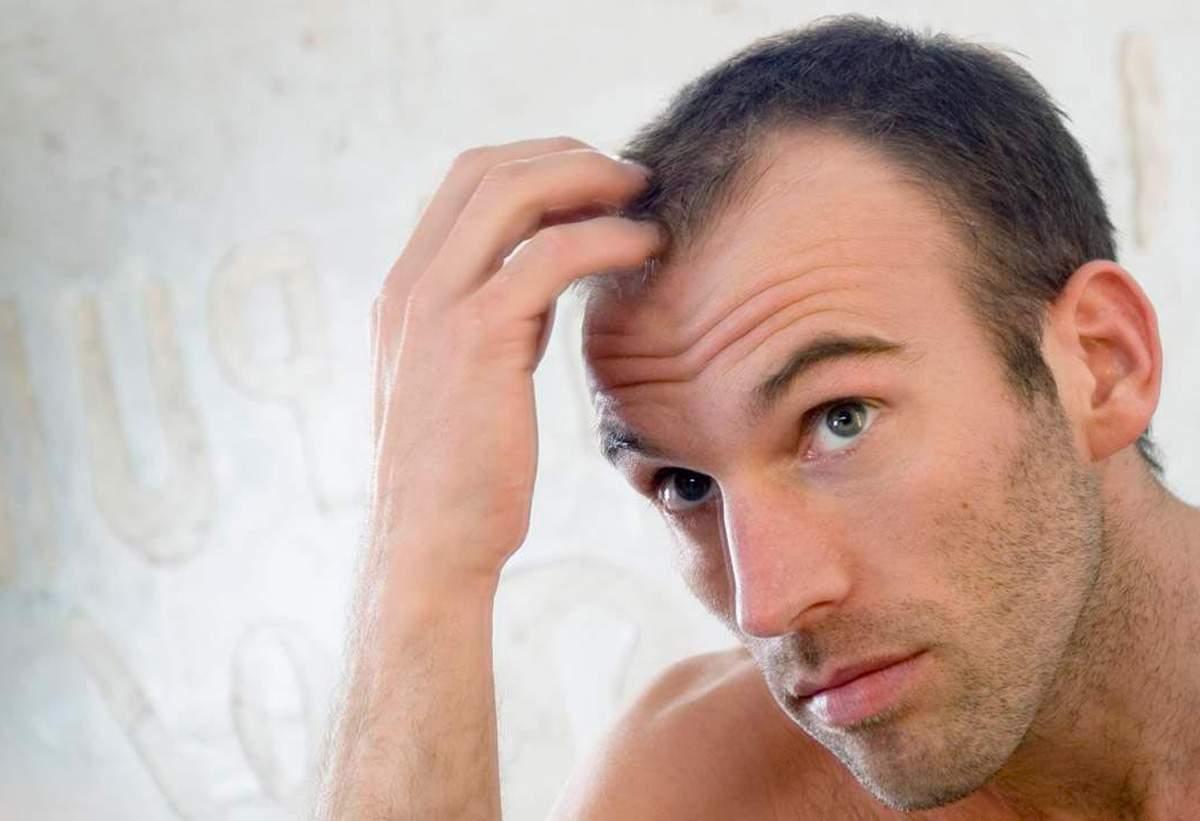 Erkeklerde Saç Dökülmesi