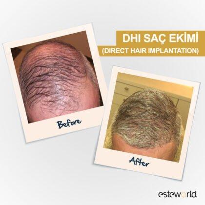 Esteworld Saç Ekimi Öncesi ve Sonrası 1