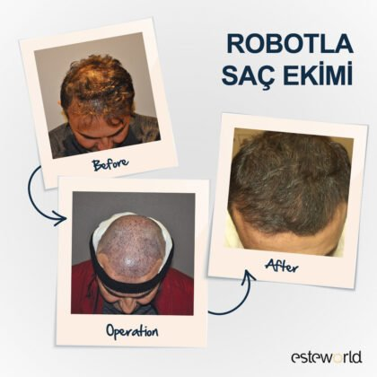 Esteworld Saç Ekimi Öncesi ve Sonrası 2