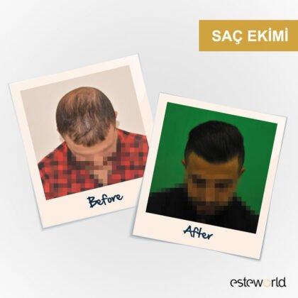 Esteworld Saç Ekimi Öncesi ve Sonrası 3