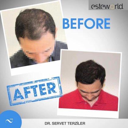 Esteworld Saç Ekimi Öncesi ve Sonrası 4