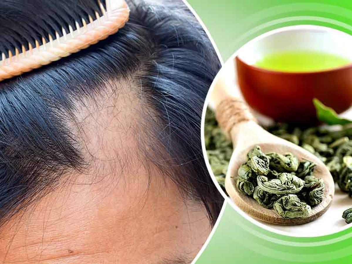 Saç Dökülmesine Ne İyi Gelir Doğal Yöntemler ve Çözümler