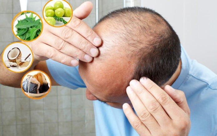 Saç Dökülmesine Ne İyi Gelir Doğal Yöntemler