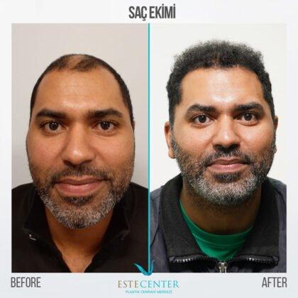 Estecenter Saç Ekimi Öncesi ve Sonrası 1