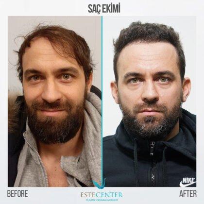Estecenter Saç Ekimi Öncesi ve Sonrası 2