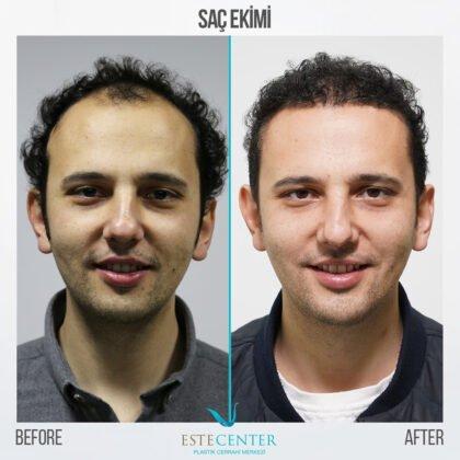 Estecenter Saç Ekimi Öncesi ve Sonrası 3