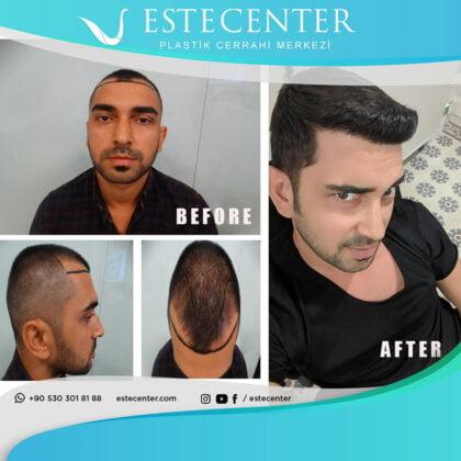 Estecenter Saç Ekimi Öncesi ve Sonrası 4