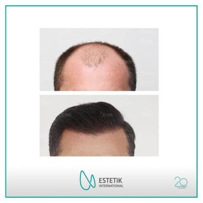 Estetik International Saç Ekim Öncesi ve Sonrası 2