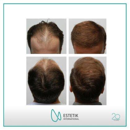 Estetik International Saç Ekim Öncesi ve Sonrası 3