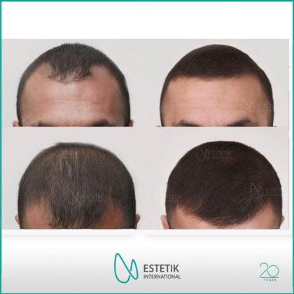 Estetik International Saç Ekim Öncesi ve Sonrası 4