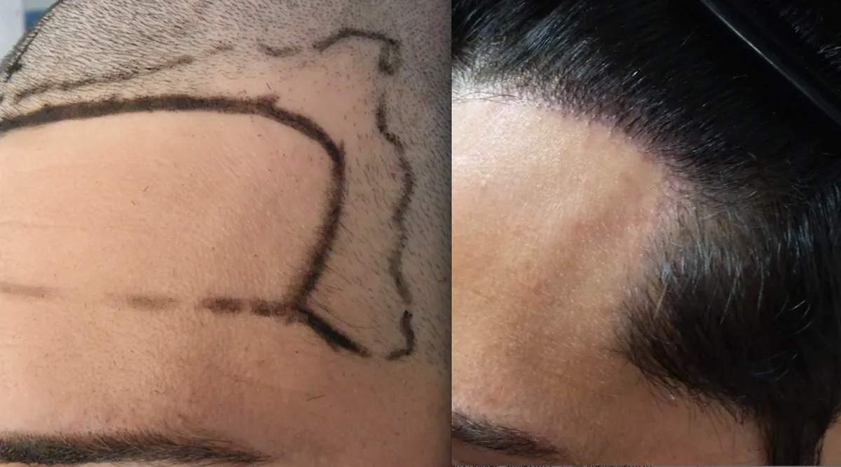 Ön Saç Bölgesi Nasıl Olmalıdır?